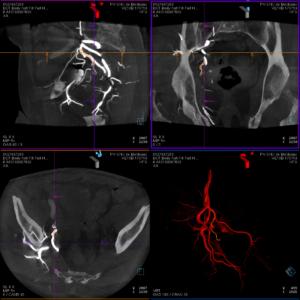 Visualisation 3D du trajet artériel